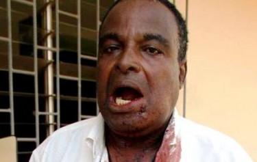 Younglove Agbéboua Amavi, Secrétaire général du SAINJOP après sa blessure par les forces de l'ordre. Photo afreepress.info avec permission